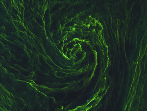Detailed image of algal bloom in the Baltic Sea acquired by Sentinel-2A on 7 August 2015. Data courtesy of Copernicus Sentinel data (2015)/ESA.